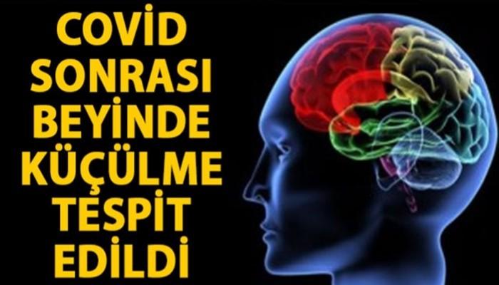'Covid-19 geçirenlerin beyninde küçülme tespit edildi' (VİDEO)