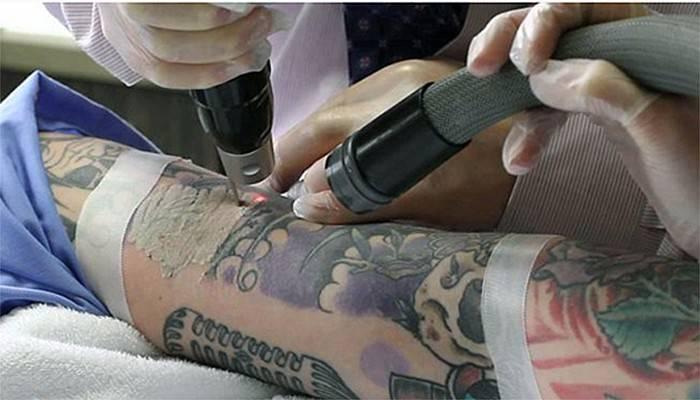 Çanakkale'de dövme sildirmek isteyenlerin dikkatine!