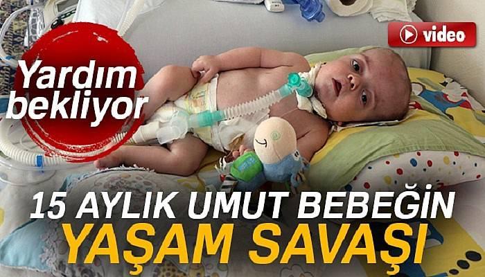 15 aylık umut bebek yardım bekliyor