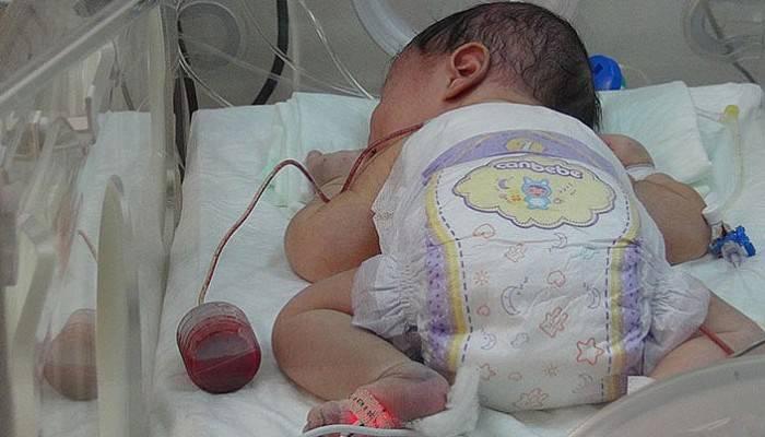 3 saatlik bebeğe, 4 saatlik ameliyat